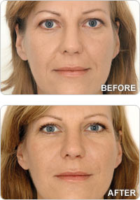 dermal-fillers-before-after-sml